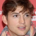 Ashton Kutcher Plastic Surgery Before and After