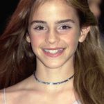 Emma Watson Plastic Surgery Before and After