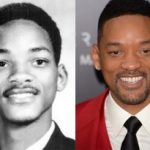 Will Smith Plastic Surgery Before And After