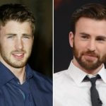 Chris Evans Plastic Surgery Before and After