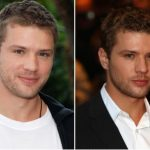 Ryan Phillippe Plastic Surgery Before and After