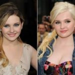 Abigail Breslin Plastic Surgery Before and After