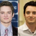 Elijah Wood Plastic Surgery Before and After