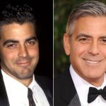 George Clooney Plastic Surgery Before and After