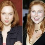 Molly Quinn Plastic Surgery Before and After