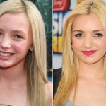 Peyton List Plastic Surgery Before and After