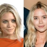 Mary-Kate Olsen Plastic Surgery Before and After