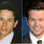 Mark Wahlberg Plastic Surgery Before and After