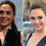 Gal Gadot Plastic Surgery Before and After