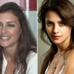 Hannah Ware Plastic Surgery Before and After