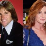 Caitlyn Jenner Plastic Surgery Before and After