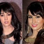 Lauren Gottlieb Plastic Surgery Before and After