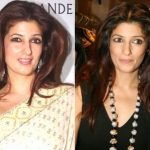 Twinkle Khanna Plastic Surgery Before and After