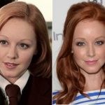 Lindy Booth Plastic Surgery Before and After