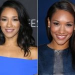 Candice Patton Plastic Surgery Before and After
