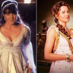 Lucy Lawless Plastic Surgery Before and After