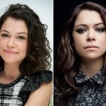 Tatiana Maslany Plastic Surgery Before and After