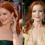 Marcia Cross Plastic Surgery Before and After