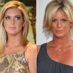 Rachel Hunter Plastic Surgery Before and After