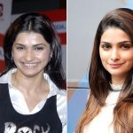 Prachi Desai Plastic Surgery Before and After