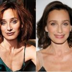 Kristin Scott Thomas Plastic Surgery Before and After