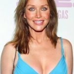 Tanya Roberts Plastic Surgery Before and After