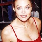Denise Richards Plastic Surgery Before and After