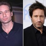David Duchovny Plastic Surgery Before and After