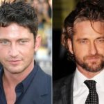 Gerard Butler Plastic Surgery Before and After