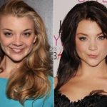 Natalie Dormer Plastic Surgery Before and After