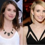 Emma Roberts Plastic Surgery Before and After
