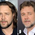 Russell Crowe Plastic Surgery Before and After