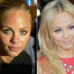 Laura Vandervoort Plastic Surgery Before and After