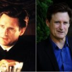 Bill Pullman Plastic Surgery Before and After