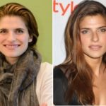 Lake Bell Plastic Surgery Before and After