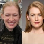 Mireille Enos Plastic Surgery Before and After