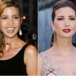 Ivanka Trump Plastic Surgery Before and After