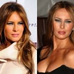 Melania Trump Plastic Surgery Before and After