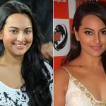Sonakshi Sinha Plastic Surgery Before and After