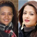 Surveen Chawla Plastic Surgery Before and After