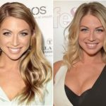 Stassi Schroeder Plastic Surgery Before and After