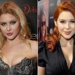 Renee Olstead Plastic Surgery Before and After