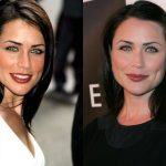 Rena Sofer Plastic Surgery Before and After