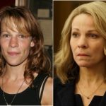 Lili Taylor Plastic Surgery Before and After